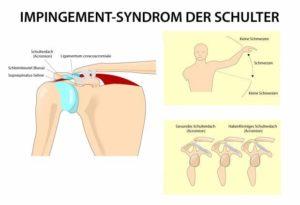 Schmerztherapeut Fortbildung